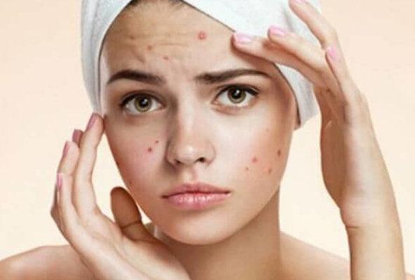 Лечение акне Мануальная терапия и остеопатия клиника косметологии и мануальной терапии Патласова ленинский вернадского