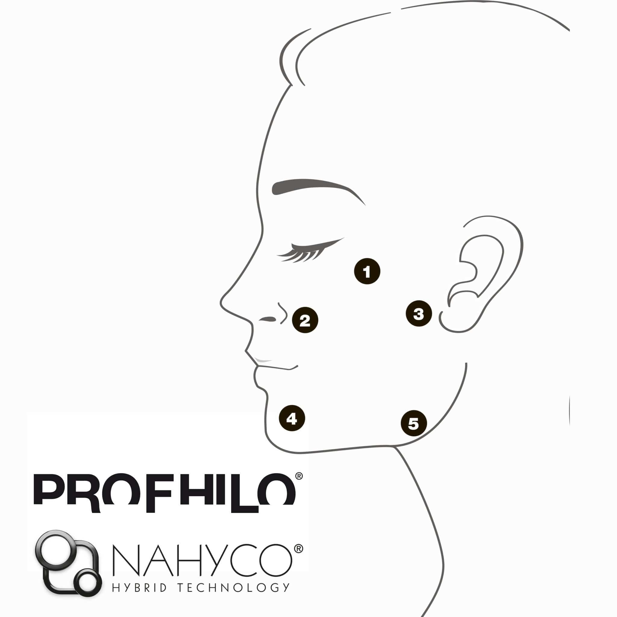 Биоремоделирование Profhilo гиалуроновой кислоты вернадского ленинский клиника патласова